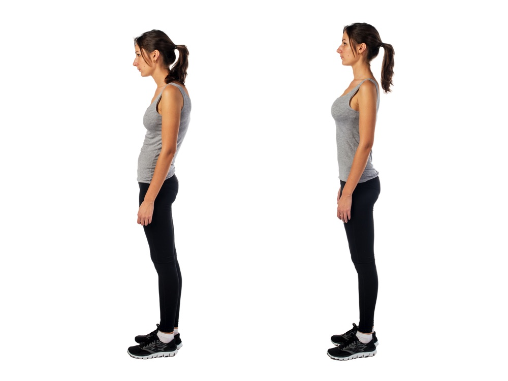 Improve your poor posture in St Albans & London